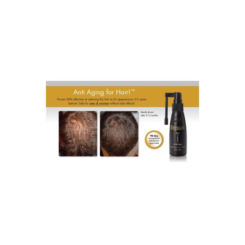 Revivogen Scalp Therapy MD Anti-Hair Loss Lotion 60 ml